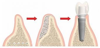 greffe osseuse dentaire nice