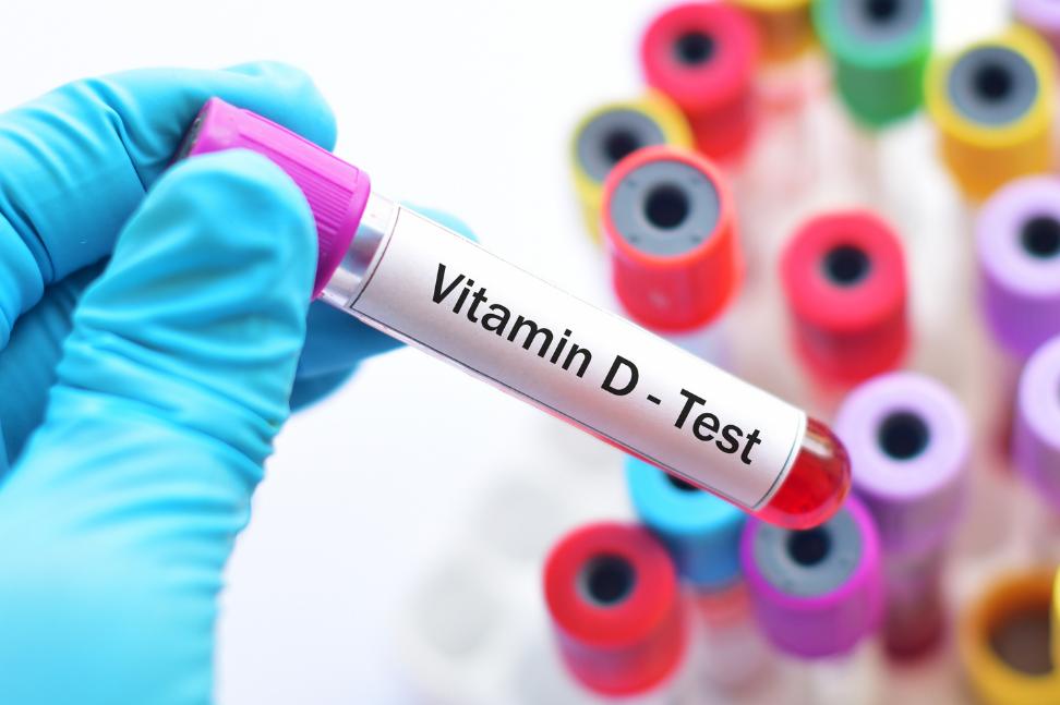 Am I deficient in vitamin D