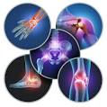 PRP Platelet Rich Plasma