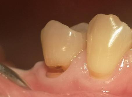 คอฟันสึก