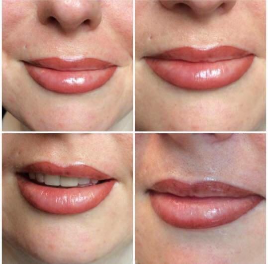 Lips treatment 4