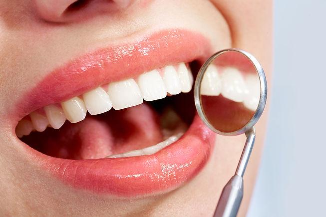 teeth-dentist-mirror.jpg