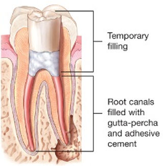 Root-Canal-Fillinged2.jpg