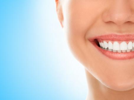Вредно ли е избелването на зъбите с продукти за домашна употреба?