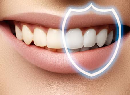 Избелване на зъби в домашни условия