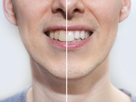 Kакво трябва да знаем за избелването на зъбите?
