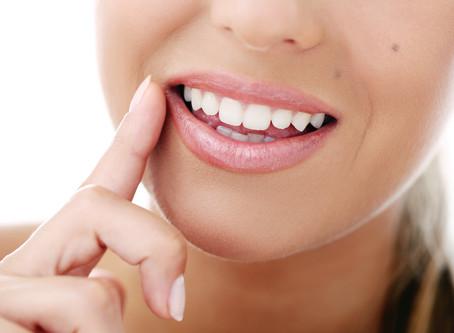 """Операция """"Бели зъби"""" в домашни условия"""