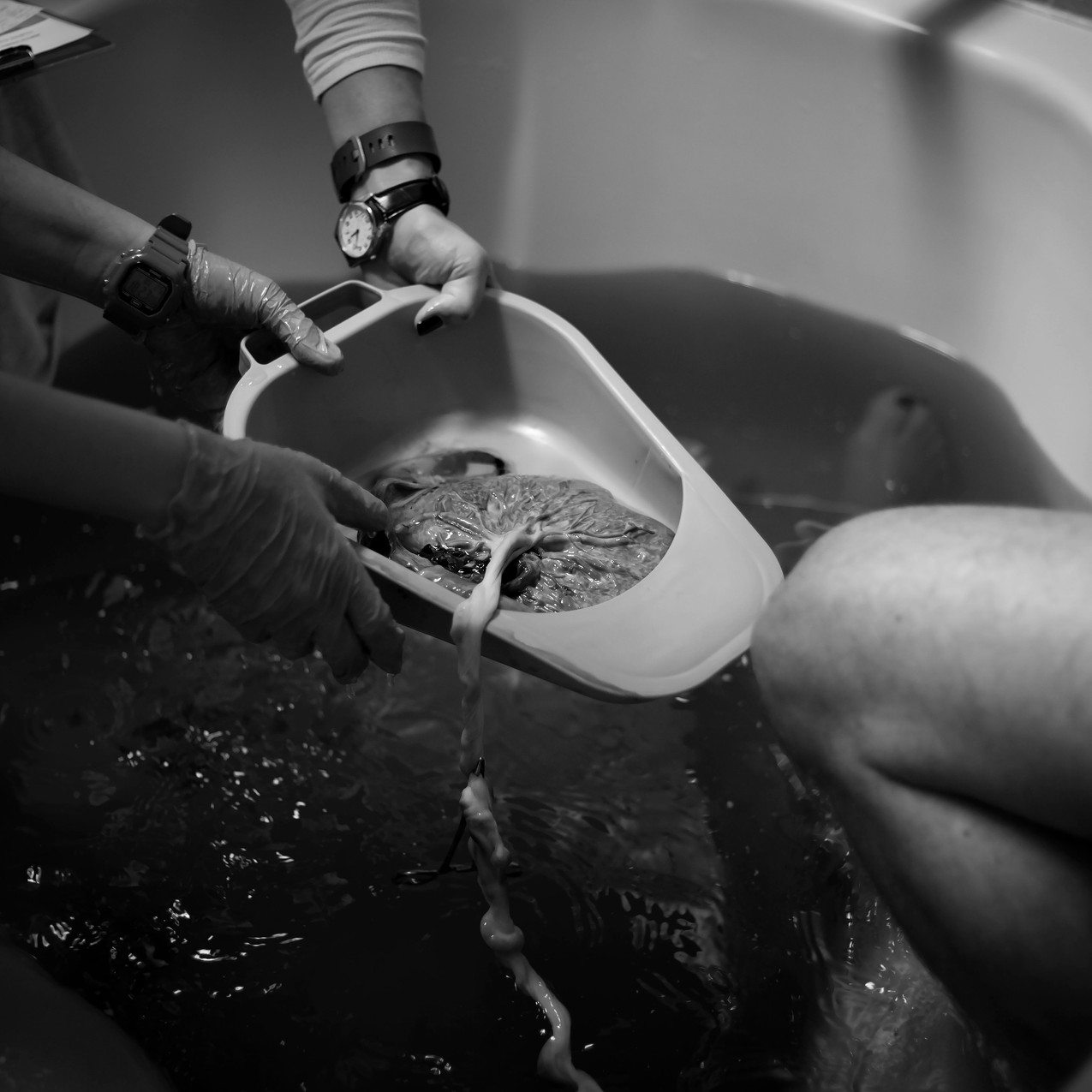 TampaBirthPhotographerLaborOfLoveBirthCenterLaborofLovebirthcenterTampaTampa Birth Photographer Tampa newborn Photographer in water birth Labor of love Lutz Fl_Jan252017_0198 copy