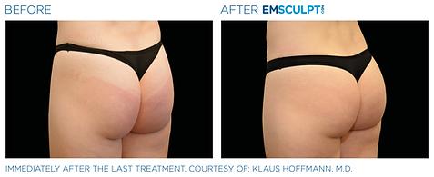 Emsculpt_Neo_PIC_Ba-card-female-buttock-
