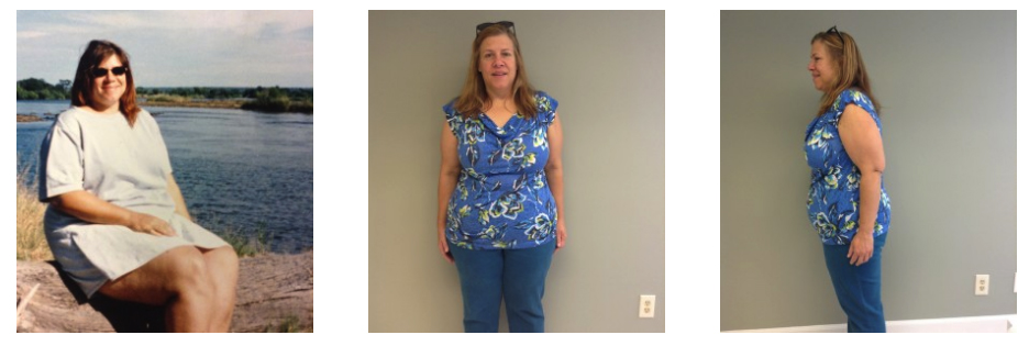 Diane Emanuel, weight loss success story at Alison Wellness Clinic Huntsville, Alabama