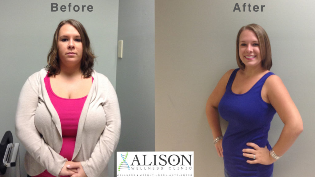 Christine Snow, weight loss success story at Alison Wellness Clinic