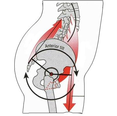 Anterior tilt can cause pinching pain in hip