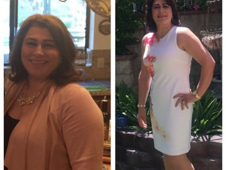 Patient lost 28 lbs, 6 dress sizes (and still going!) without exercise by following Dr. Lundquist&#3
