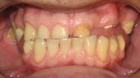 Antes Tratamiento Restauración Oral