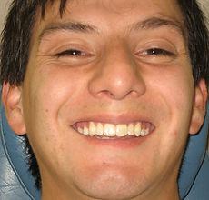 Tratamiento Ortodoncia terminado