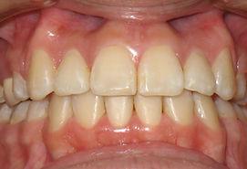 Tratamiento terminado Ortodoncia