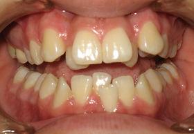 Antes de Tratamiento Ortodoncia
