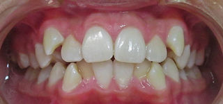Antes Tratamiento Ortodoncia