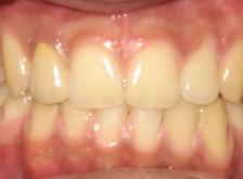Tratamiento Restauración oral terminado