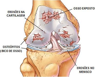 Osteoartrose - Desgaste da Articulação/ Site Dr. César Martins