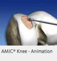 Lesão da Cartilagem - Site Dr. César Martins
