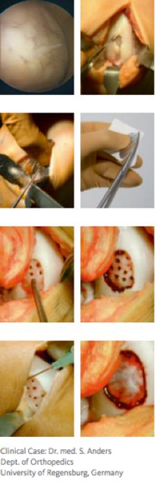 Lesões de Cartilagem - Site Dr. César Martins