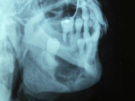 Como afecta la Osteoporosis a la cavidad oral