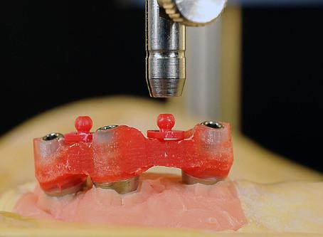 Curso Avanzado para Protésicos Dentales: Prótesis Removibles