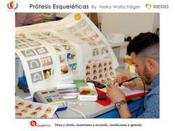 Prótesis Instituto FP Cáceres