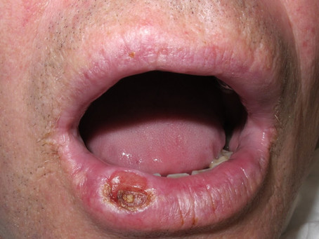 La Sífilis en la consulta Dental