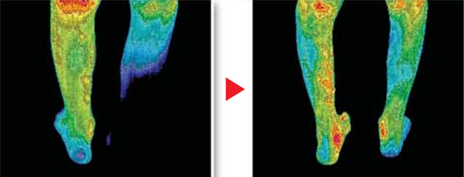 BioMat increases circulation showing that after just minutes on the Biomat, the circulation in the lower legs of this young man had improved by 80%