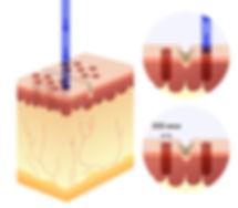 омоложение методом фракционного лазерного термолиза