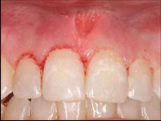 лазерный аппарат Кристалл в стоматологии