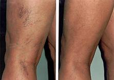 до и после эндовенозной лазерной коагуляции (облитерации) вен