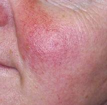 лечение лазером Расширенные сосуды или сосудистая сетка на лице