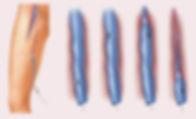 Механизм воздействия лазерного излучения на сосуды при ЭВЛК