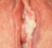 лазерное иссечение лейкоплакии