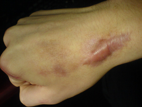 Scar Tissue: Are you Scarred for Life?