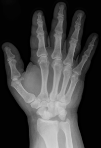 Thumb pain 2