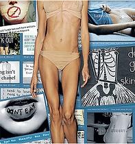 CITTRAL Anorexia Bulimia Sobrepeso Obesidad