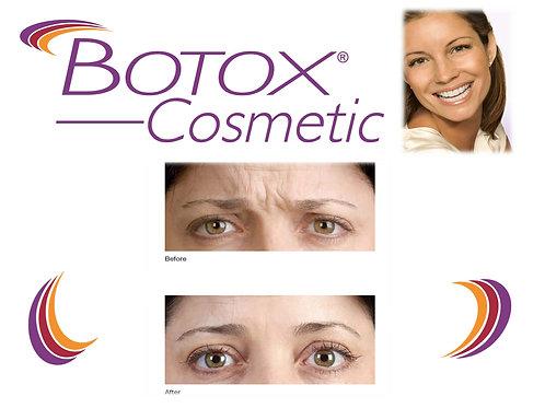 25 Units of Botox