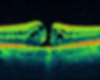 Macular Hole .jpg