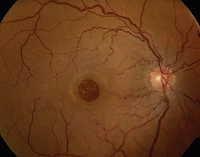 Macular Hole photo 1.PNG