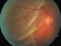 Retinal detachment photo1.PNG