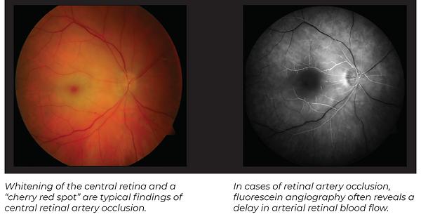 Retinal Artery occ photo1.PNG