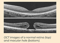 Macular Hole photo 2.PNG