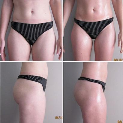Facial Treatments | Body Waxing | Advanced Skin Care | Body Wraps | Body Contouring | Bioslimming