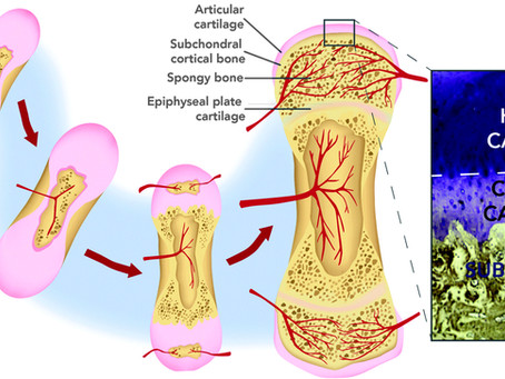 Beyond Cartilage Repair: The Role of the Osteochondral Unit in Joint Health and Disease