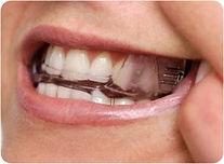 Dental Mouth Guard for Snoring |  Dental Mouthpiece for Sleep Apnea | The Snoring Clinic