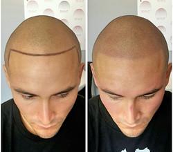 hairline restored